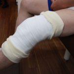 膝関節捻挫の固定範囲を分かりやすいように横から撮影しました