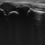 新中野の大木接骨院で肘関節外側を超音波検査後の超音波画像