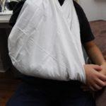 新中野の大木接骨院で橈骨骨幹端骨折、上腕骨外顆不全骨折への固定完了後、三角巾で吊るした状態