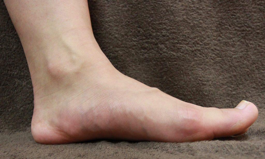 アーチのある疲れにくい足