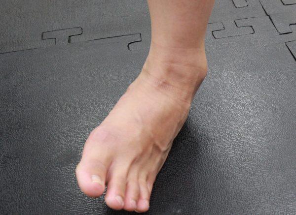 よく起こるスポーツのケガ No1|足関節捻挫