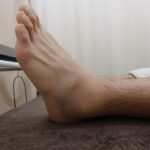 足首の捻挫(バスケで起きやすい動き)