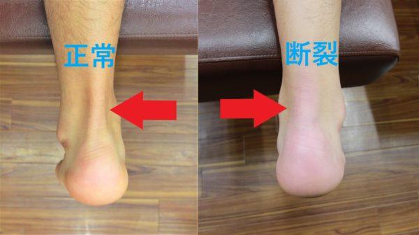 正常なアキレス腱と断裂後のアキレス腱