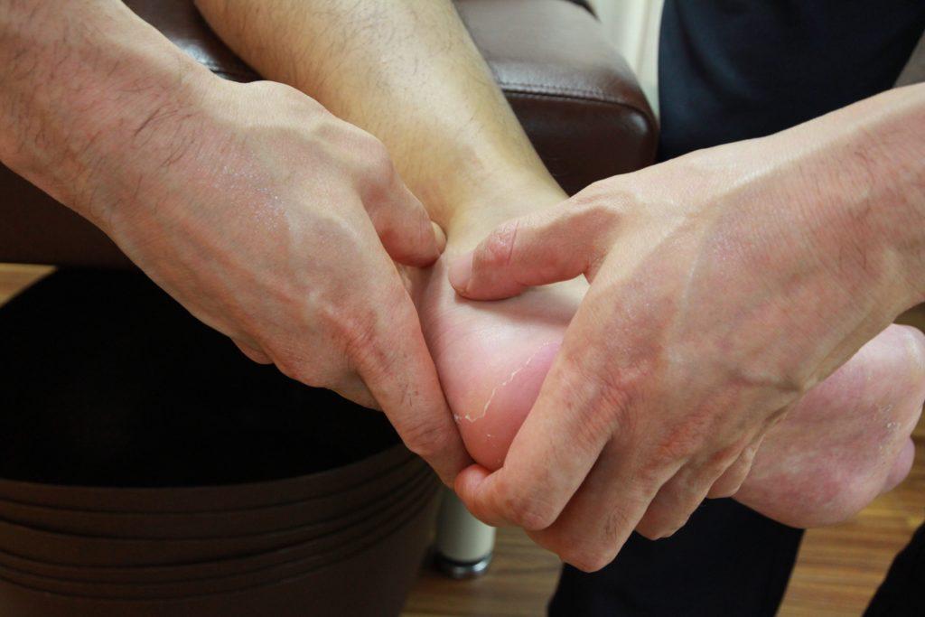 新中野大木接骨院のアキレス腱断裂後の筋膜リリース