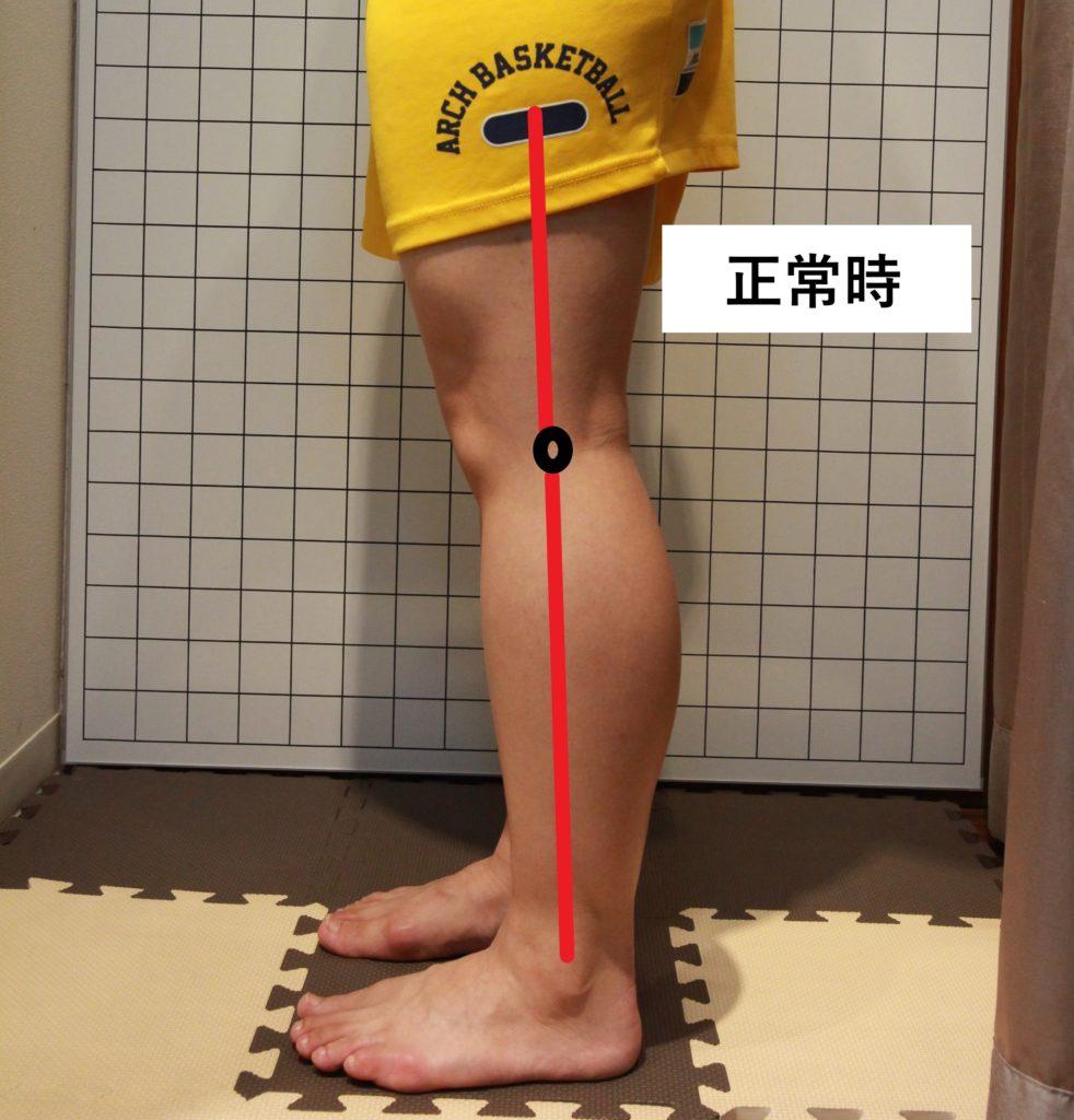 膝の正常時