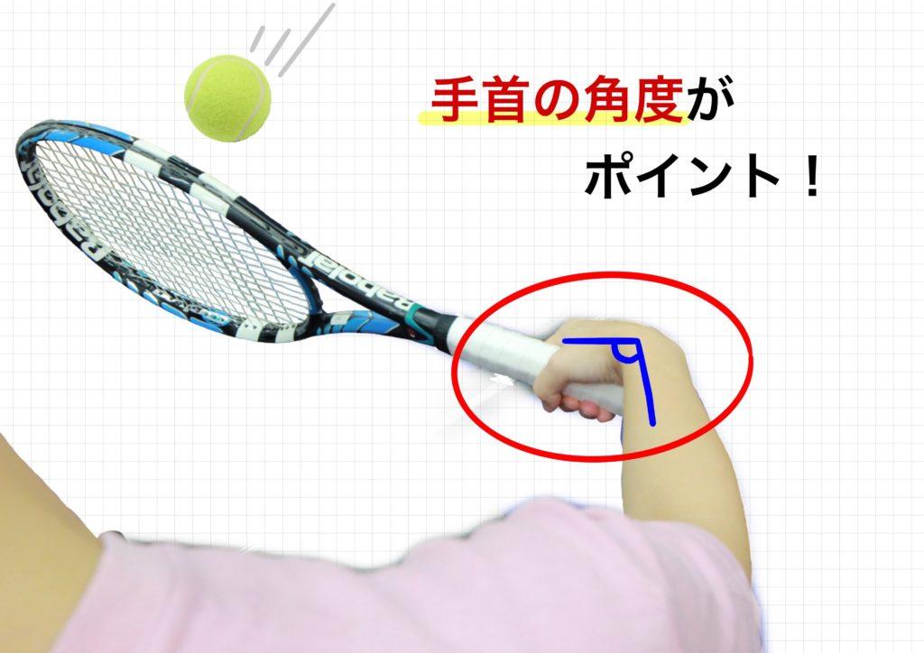 新中野大木接骨院ではテニス肘の原因を分かりやすく表した画像