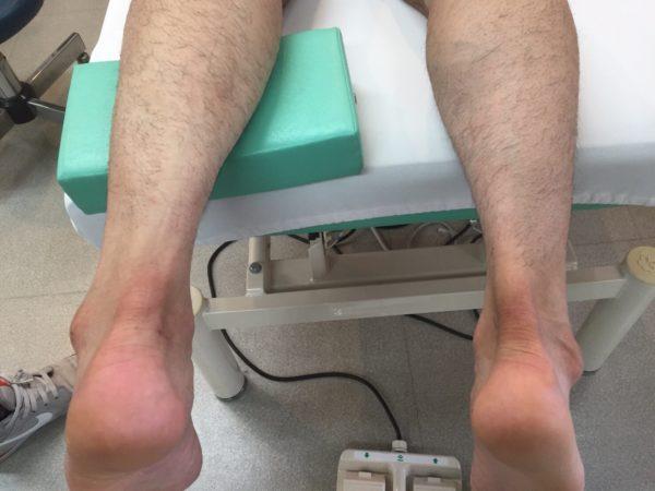 アキレス腱断裂の足を上から見る
