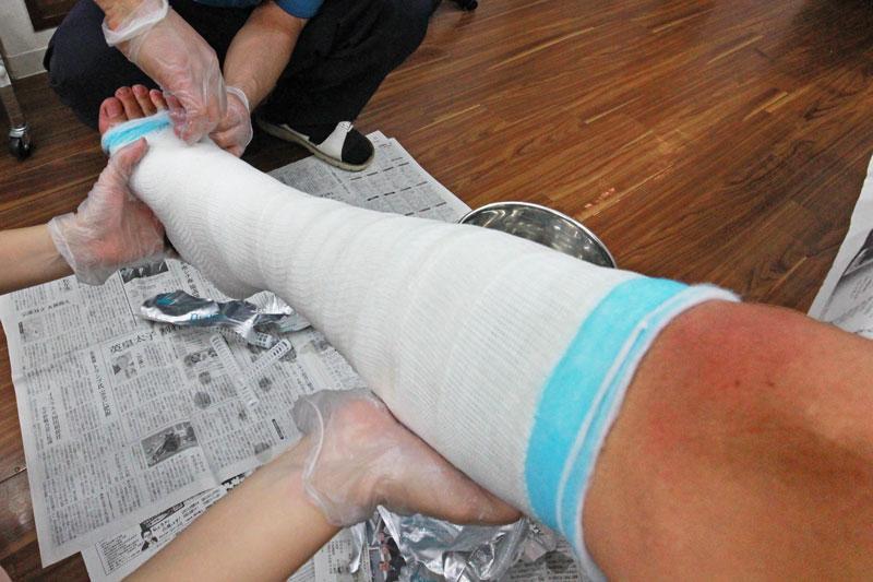 アキレス腱断裂をキャストライトで固定している様子
