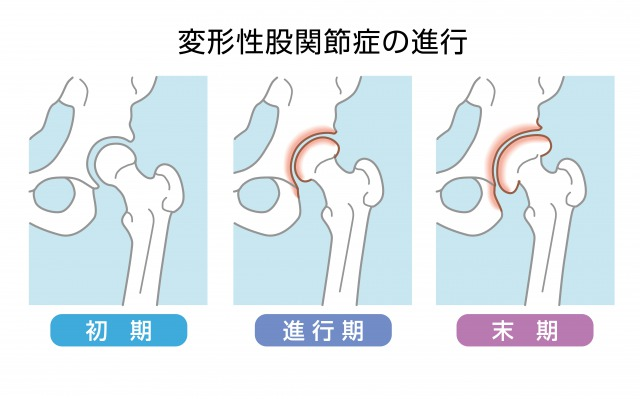 変形性股関節症の進行状況