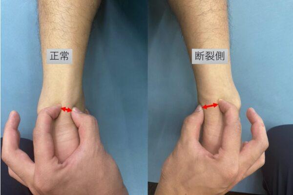アキレス腱断裂から2年後のアキレス腱の太さ