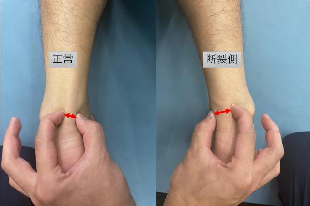 アキレス腱断裂の保存療法から2年後の現状
