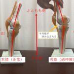膝の過伸展が起きやすい瞬間