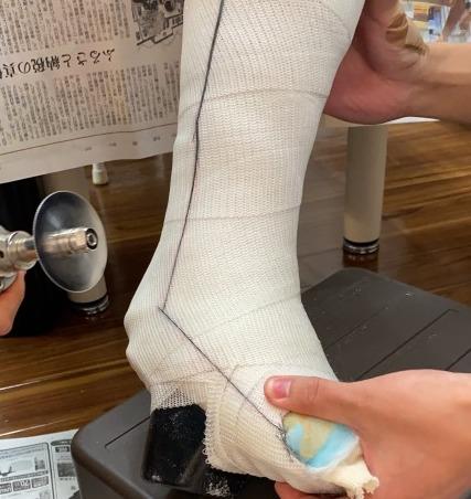 アキレス腱断裂の固定をギプスカッターで外す