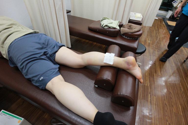 アキレス腱断裂受傷当日の外見
