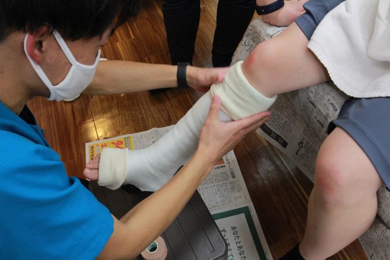 アキレス腱断裂へのギプス固定